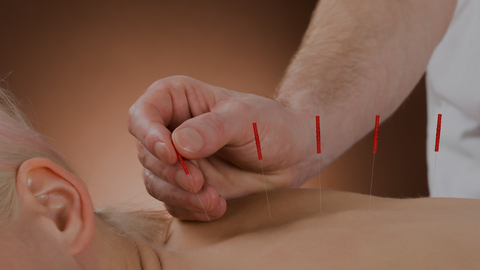 Man Getting Acupuncture