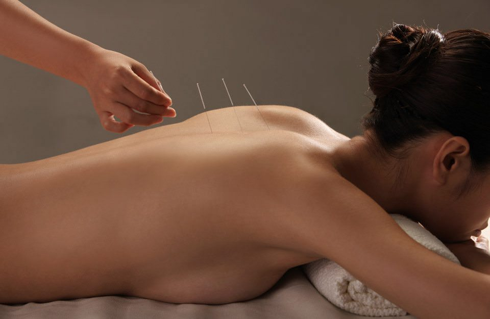 Menopause Focus with Acupuncture and Herbs